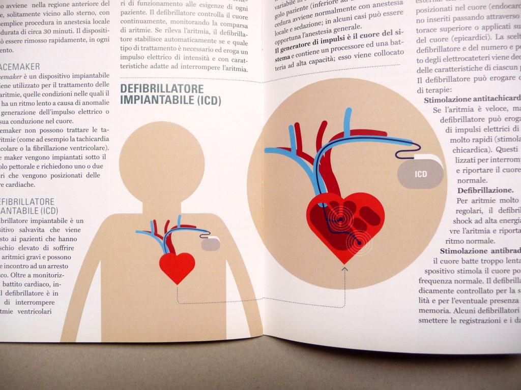 Cardio 09